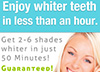Only 1 Hour To White Teeth